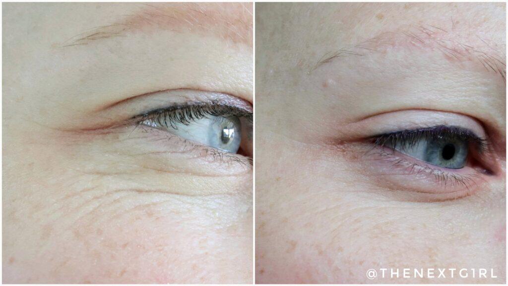 Resultaat hyaluronzuur filler serum na 6 weken oogrimpels