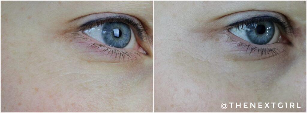 Voor en na foto rimpeltjes ROC Correxion retinol serum