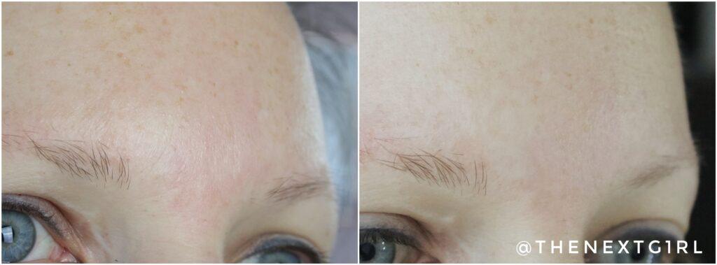 Voor en na foto fijne lijntjes ROC Correxion retinol serum