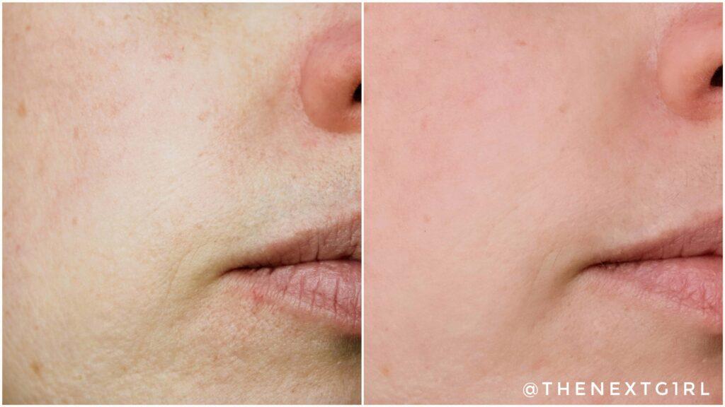 Voor en na fijne lijntjes hyaluronzuur creme