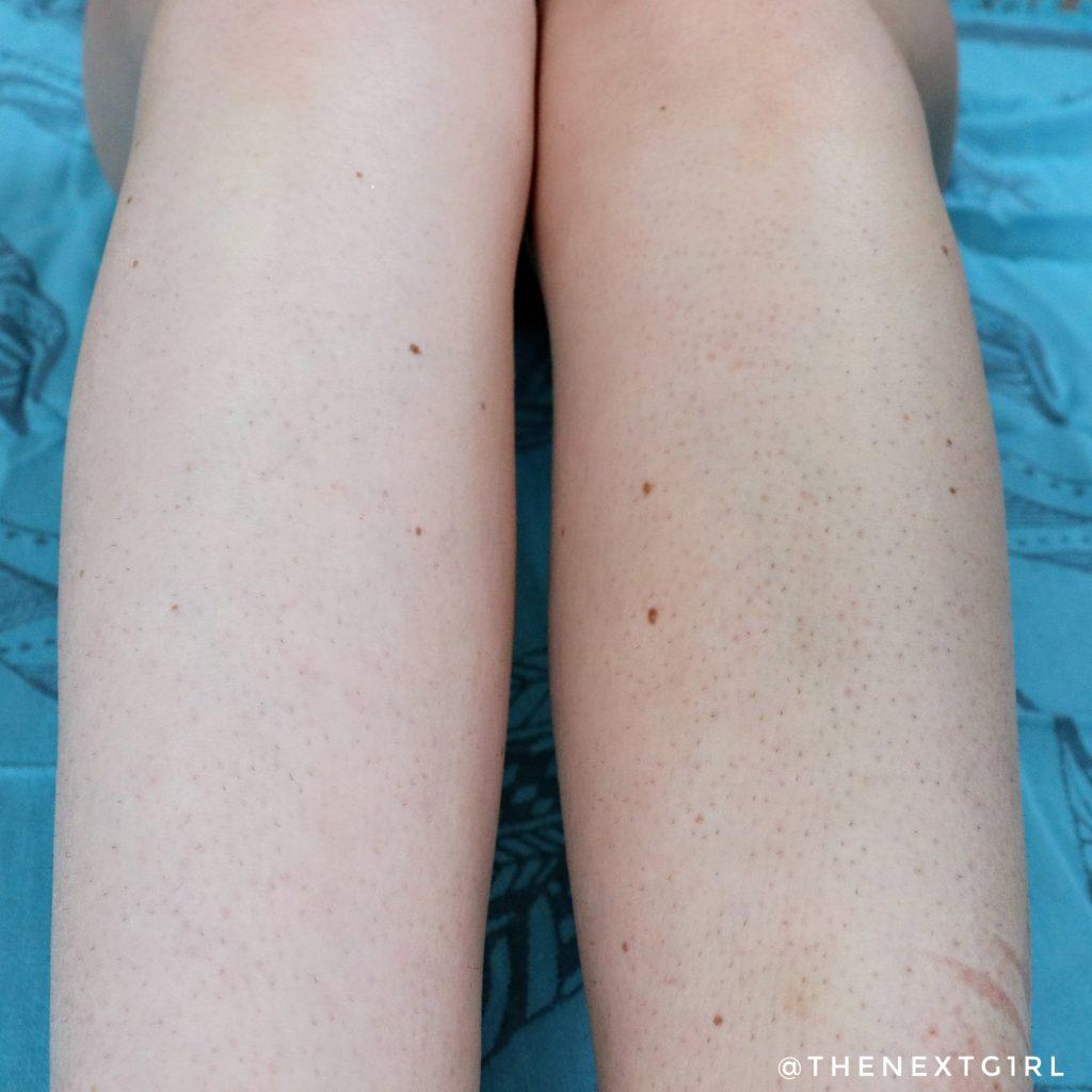 Verschil na één keer DOVE zelfbruinende bodylotion